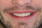 porcelain veneers smile after