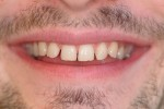 porcelain veneers smile before